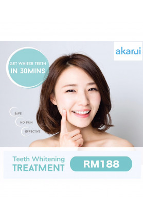 TEETH WHITENING TREATMENT (RM188)